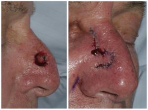A Skin Cancer Surgery