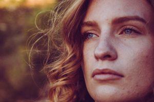 Symptoms of Acne
