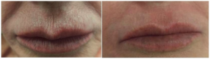 Barcode Lip Lines Treatment