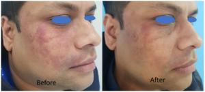 Birthmark Treatment In Dark Skin