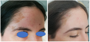 Birthmark Treatment With Laser