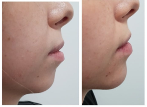 Chin Support With Fillers