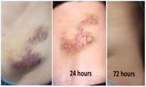 Deep Bruising Treated With Vbeam Laser