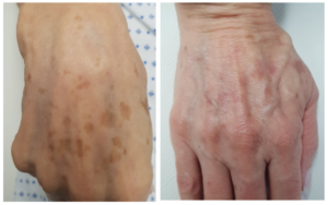 Hand Pigmentation Treatment