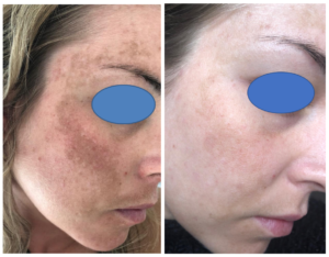 Hyperpigmentation Treatment With Laser