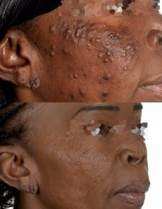 Forms of Acne
