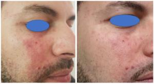 Laser Birthmark Treatment