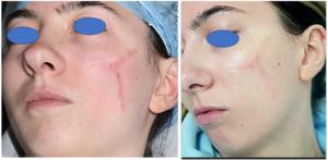 Laser Scar Treatment