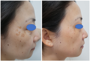 Laser Treatment For Pigmentation In Asian Skin