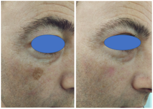 Laser Treatment For Sun Damage