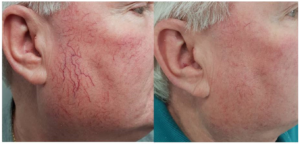 Rosacea Treatment With Laser