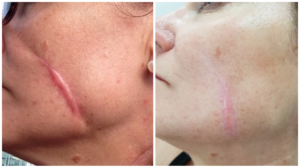 Scar Treatment With Dr Firas