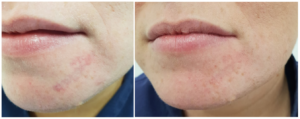 Scar Treatment With Laser