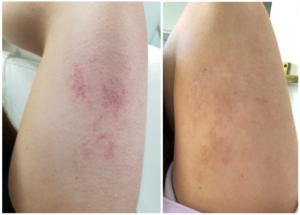 Single Treatment For Birthmark