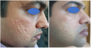 Subcision Treatment For Acne Scars