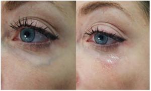 Undereye Veins Treatment