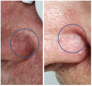 Vessel Clearance With Laser Treatment