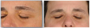 Xanthelasma Treatment