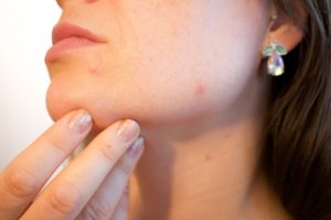 Smooth Your Acne Scars With Laser Treatment