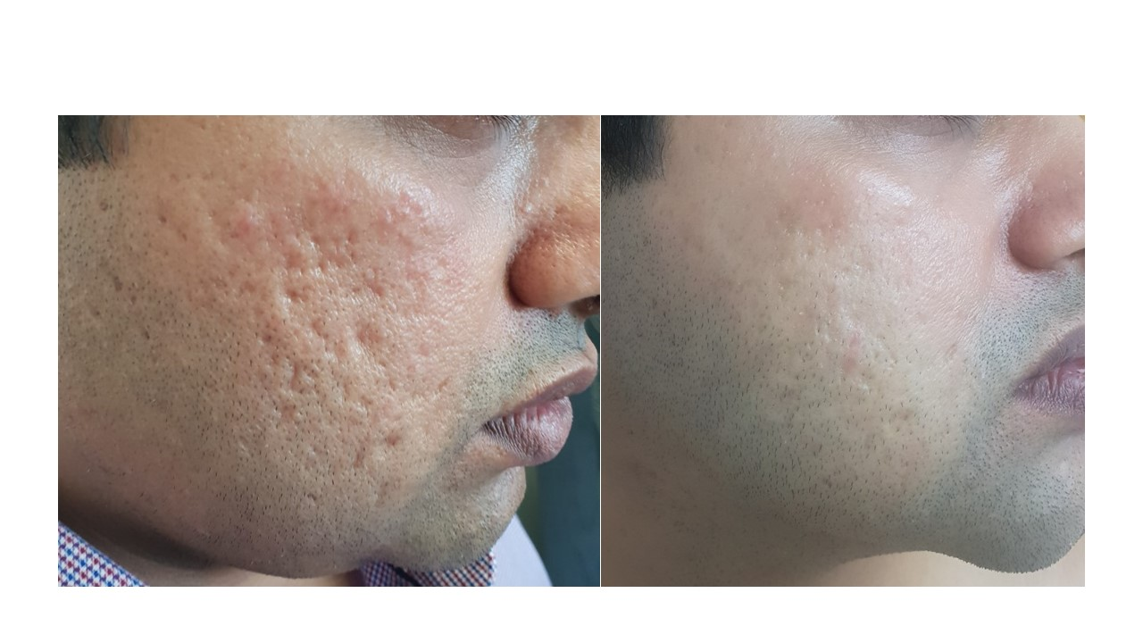 Acne Scars Before And After Dr Firas Al Niaimi