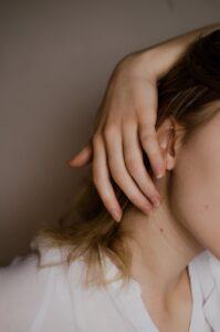 birthmark removal london