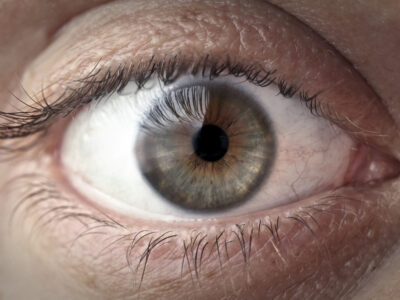 Eyelid Skin Tightning